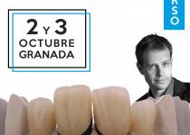 curso-Veneers-Pro-Granada