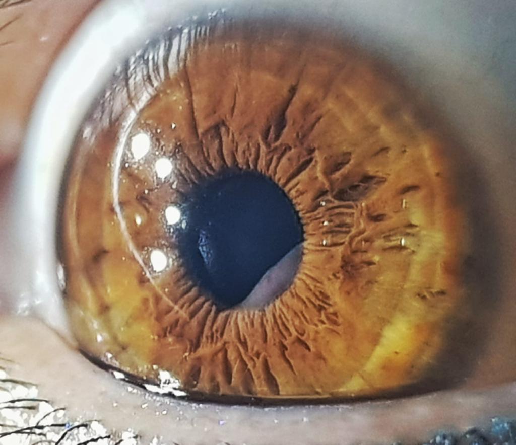 ojo 02