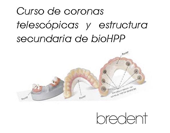 Telescopicas_Bredent