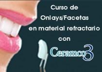 Ceramco3_Onlays-Facetas_Mayo2015