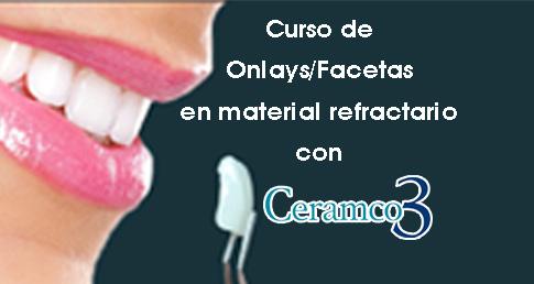 ONLAYS/ FACETAS CERAMCO 3