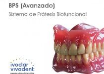 curso_completas_ivoclar
