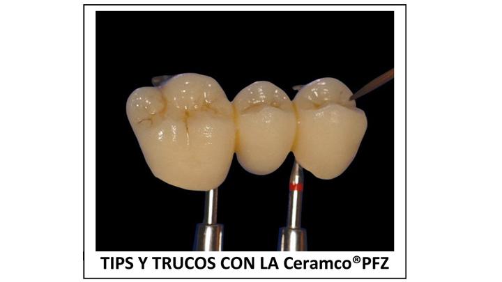 TIPS Y TRUCOS CERAMCO PFZ
